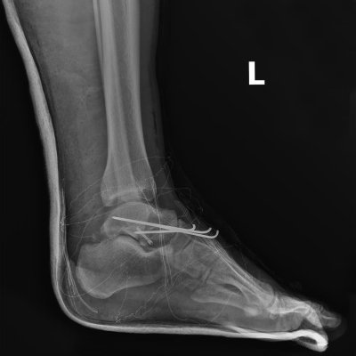 foot surgical hardware
